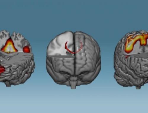 Neurofeedback: allenare il cervello contro i disturbi neurologici